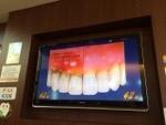 歯周病から動脈硬化へ